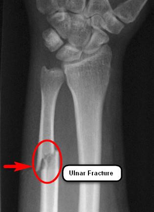 Ulnar-Fracture