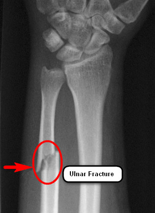 Ulnar-Fracture